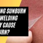 Welding Sunburn - Can Welding Really cause sunburn? Effect on Skin and Eyes
