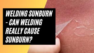 Welding Sunburn