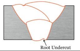 Internal Undercut or Root Undercut