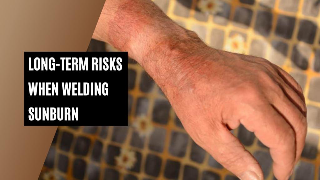 Long-term risks when welding sunburn