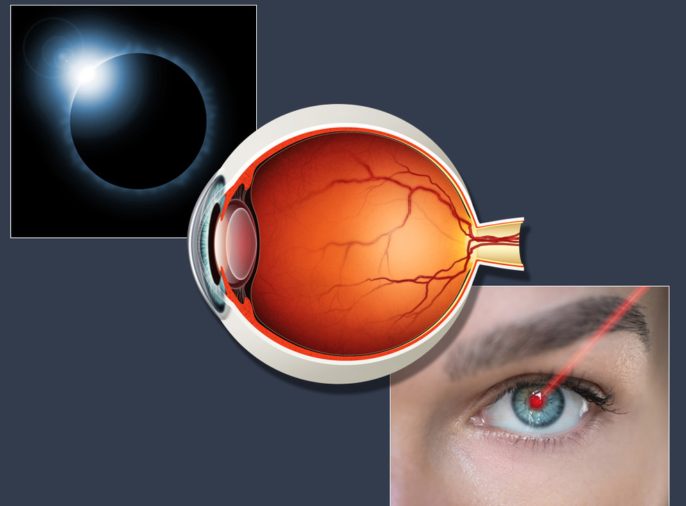 Facts and Tips About Eye Damage